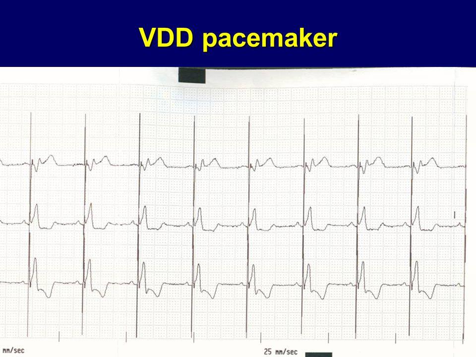 VDD pacemaker