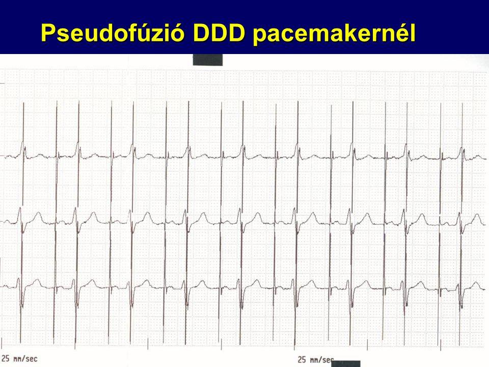 Pseudofúzió DDD pacemakernél
