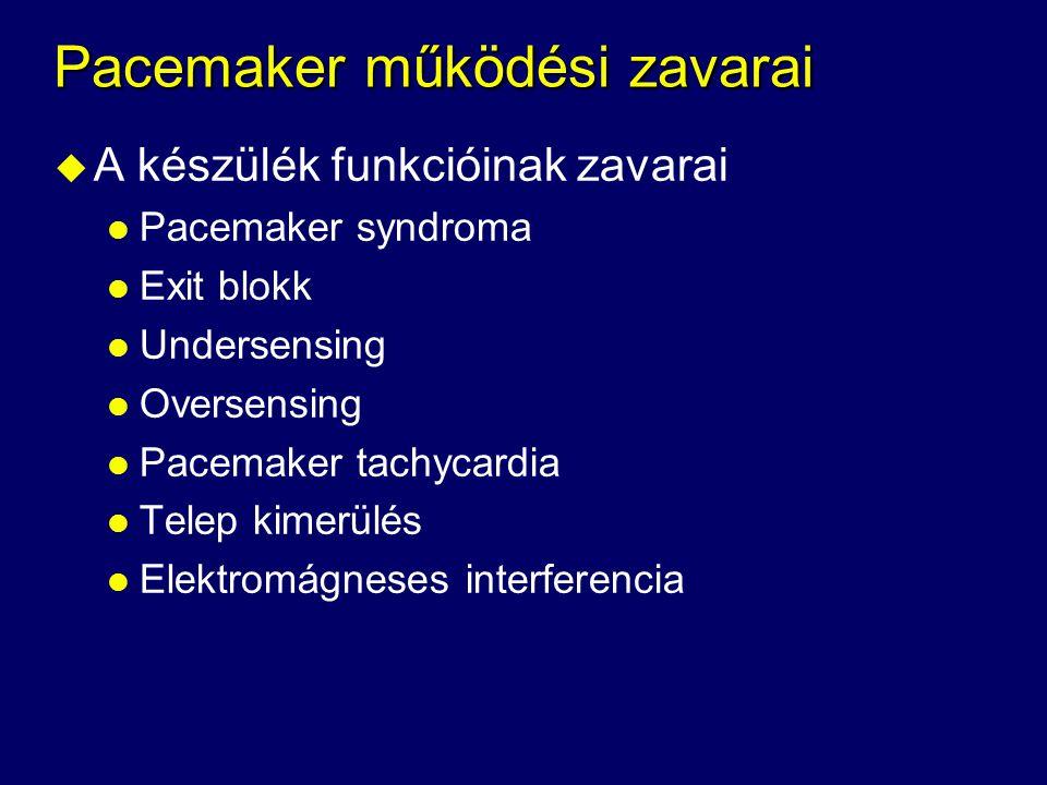 Pacemaker működési zavarai u A készülék funkcióinak zavarai l Pacemaker syndroma l Exit blokk l Undersensing l Oversensing l Pacemaker tachycardia l T