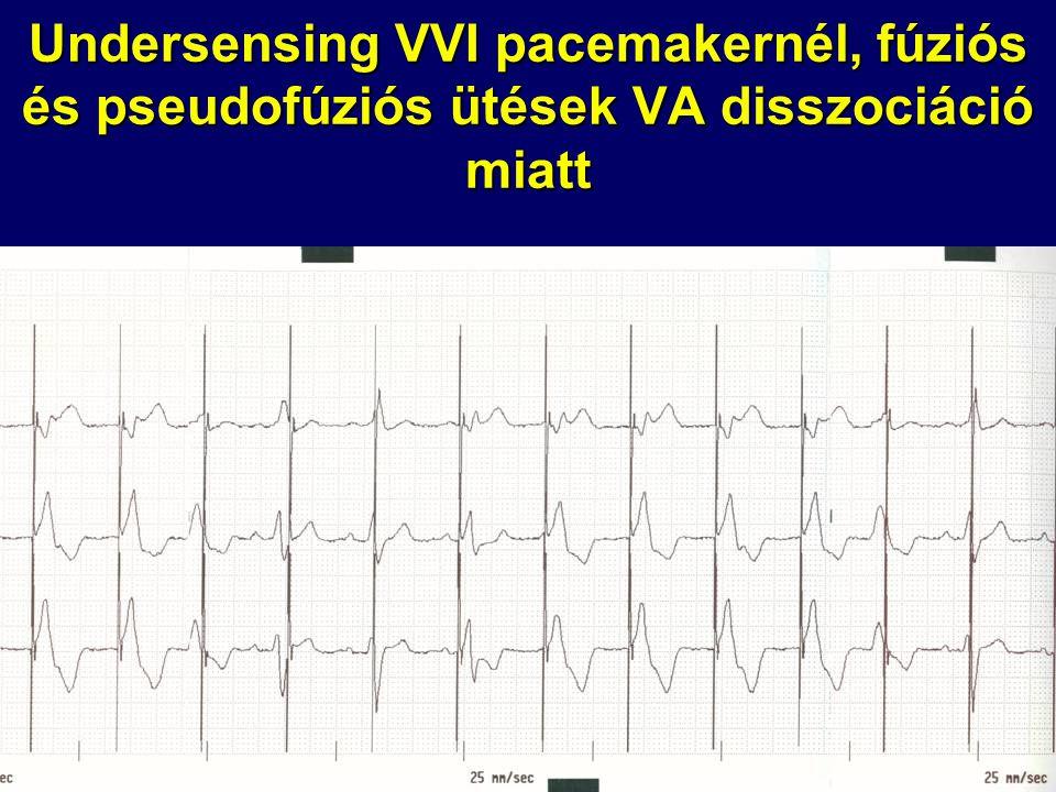 Undersensing VVI pacemakernél, fúziós és pseudofúziós ütések VA disszociáció miatt