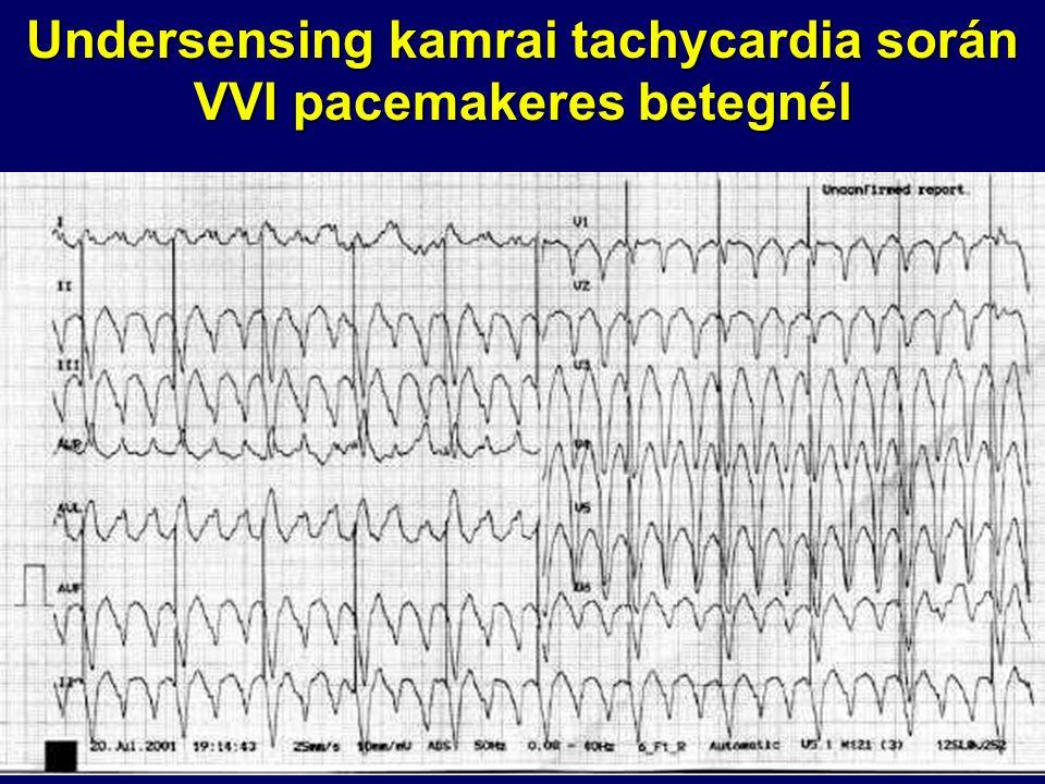 Undersensing kamrai tachycardia során VVI pacemakeres betegnél