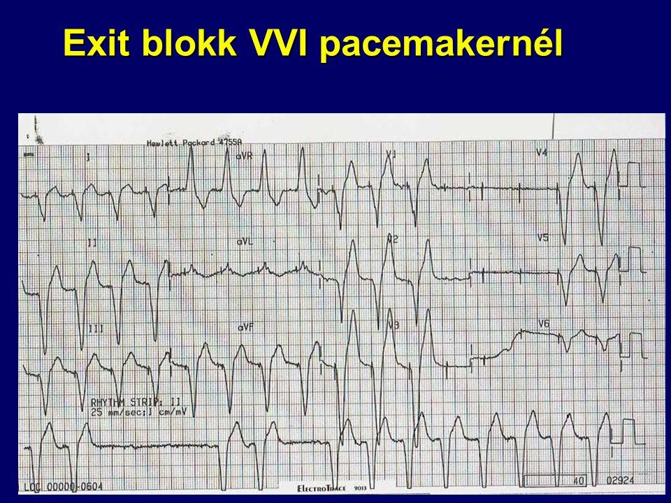 Exit blokk VVI pacemakernél
