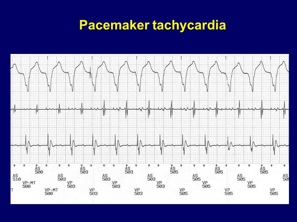 Pacemaker tachycardia