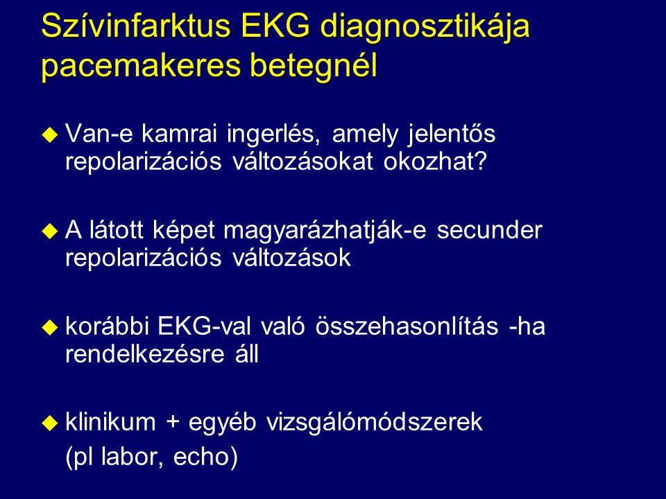 Szívinfarktus EKG diagnosztikája pacemakeres betegnél u Van-e kamrai ingerlés, amely jelentős repolarizációs változásokat okozhat? u A látott képet ma