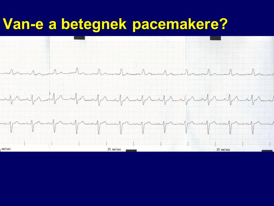 Van-e a betegnek pacemakere?