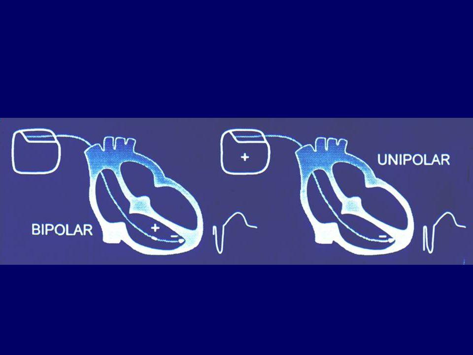 Együregű pacemakerek időzítése Alapelv: A PM stimuláljon, ha szükséges, de ne stimuláljon, ha nem szükséges