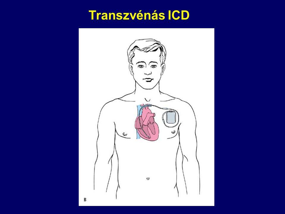 Transzvénás ICD