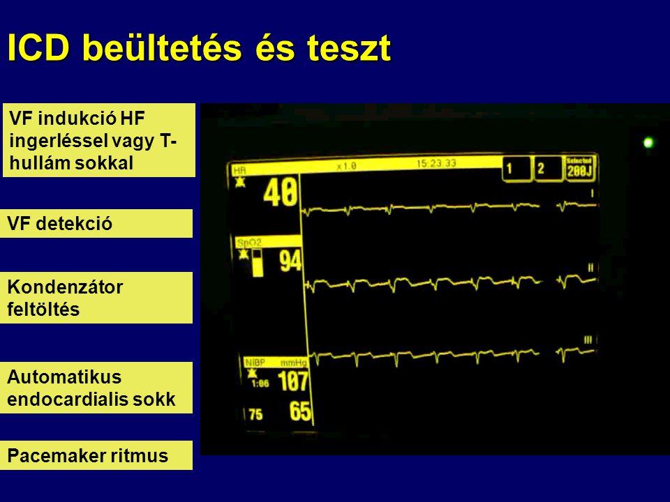 ICD beültetés és teszt VF indukció HF ingerléssel vagy T- hullám sokkal VF detekció Kondenzátor feltöltés Automatikus endocardialis sokk Pacemaker rit