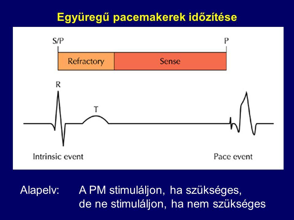 Irreguláris interspike intervallumok a refrakter periódusban történő érzékelés miatt