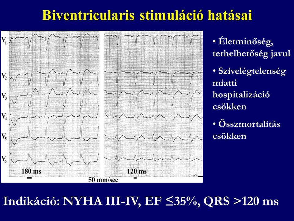 Biventricularis stimuláció hatásai • Életminőség, terhelhetőség javul • Szívelégtelenség miatti hospitalizáció csökken • Összmortalitás csökken Indiká