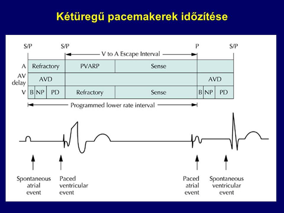 Reszinkronizációs kezelés (CRT) atriobiventriculáris ingerlés AP 1000 ms 160 ms