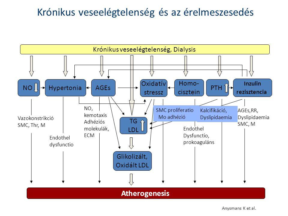 Krónikus veseelégtelenség, Dialysis NOHypertoniaAGEs Oxidatív stressz Homo- cisztein PTH TG LDL Glikolizált, Oxidált LDL Atherogenesis Vazokonstrikció