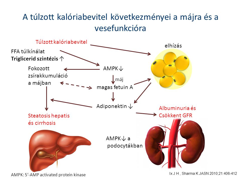 Túlzott kalóriabevitel elhízás Steatosis hepatis és cirrhosis Adiponektin ↓ Albuminuria és Csökkent GFR Fokozott zsírakkumuláció a májban A túlzott ka