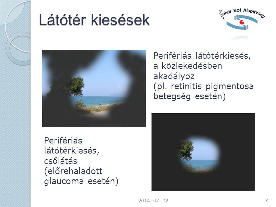 Látótér kiesések 8 Perifériás látótérkiesés, a közlekedésben akadályoz (pl. retinitis pigmentosa betegség esetén) Perifériás látótérkiesés, csőlátás (