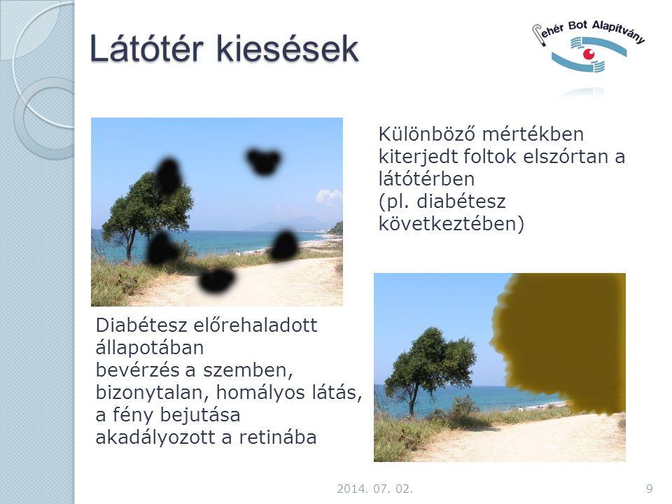 Látótér kiesések 9 Különböző mértékben kiterjedt foltok elszórtan a látótérben (pl. diabétesz következtében) Diabétesz előrehaladott állapotában bevér