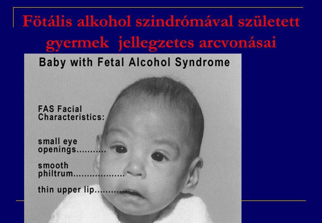 Fötális alkohol szindrómával született gyermek jellegzetes arcvonásai