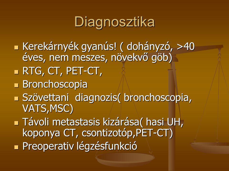 Diagnosztika  Kerekárnyék gyanús! ( dohányzó, >40 éves, nem meszes, növekvő göb)  RTG, CT, PET-CT,  Bronchoscopia  Szövettani diagnozis( bronchosc
