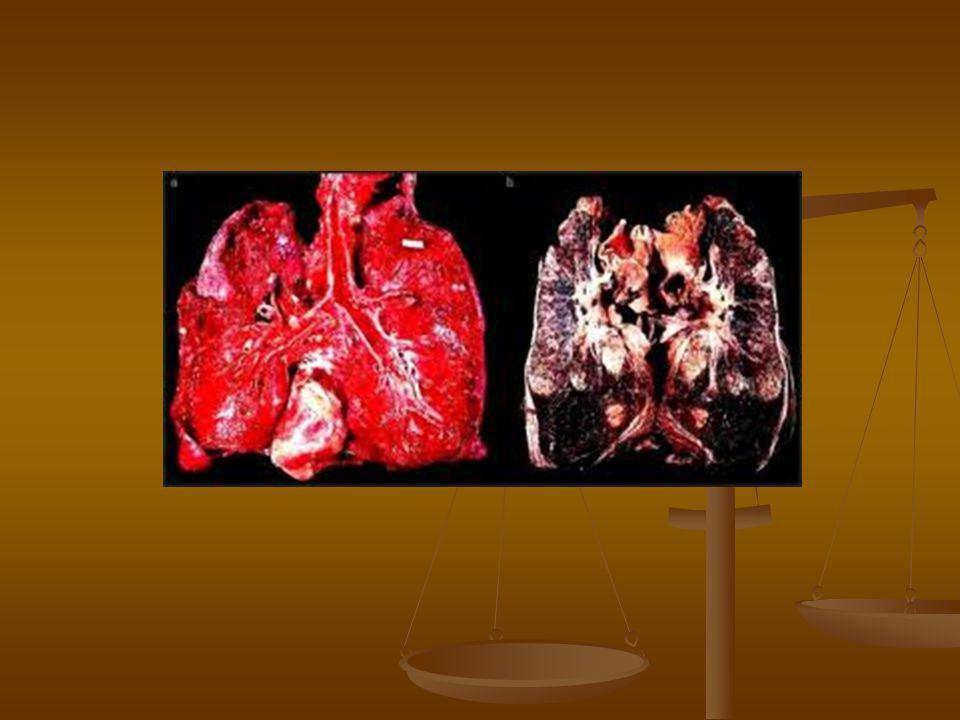 Diagnózis  Laborvizsgálatok-markerek is  Emlő UH vizsgálat  Emlő MR vizsgálat  Mammographia  Ductographia  Csontscintigraphia  PET  Hasi UH, mellkas RTG