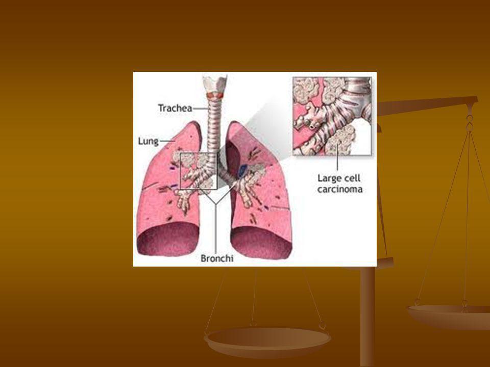 Okok  Dohányzás (85%)-napi 2 doboz cigaretta 30x-os kockázat, a latencia idő 30 év  Passiv dohányzás - 1,5-2x-es rizikó  Karcinogének (króm, arzén, azbeszt,ionizáló sugárzás, nikkel)  Genetikai pedispositio (2-3 x-os)
