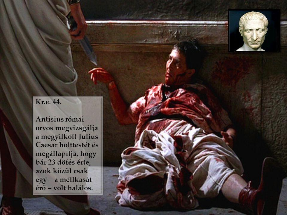 Kr.e. 44. Antisius római orvos megvizsgálja a megyilkolt Julius Caesar holttestét és megállapítja, hogy bár 23 döfés érte, azok közül csak egy – a mel