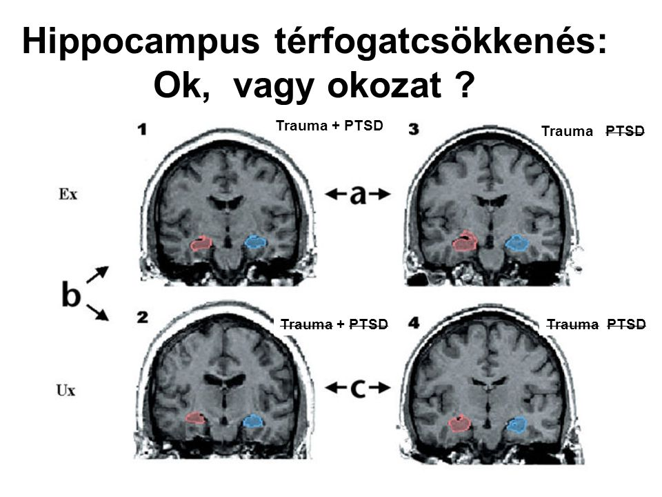 Hippocampus térfogatcsökkenés: Ok, vagy okozat ? Trauma + PTSD Trauma PTSD Trauma + PTSD