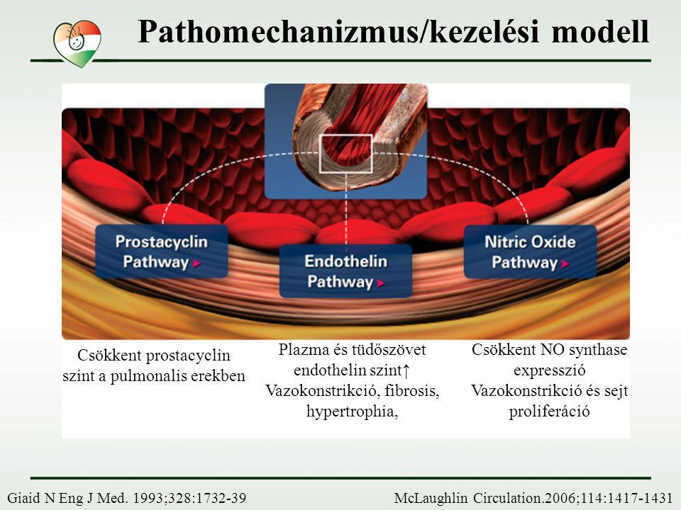 Csökkent prostacyclin szint a pulmonalis erekben McLaughlin Circulation.2006;114:1417-1431 Plazma és tüdőszövet endothelin szint↑ Vazokonstrikció, fib