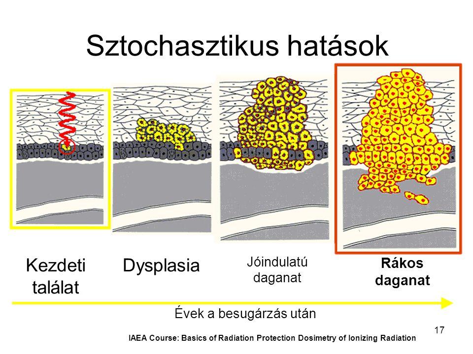 17 IAEA Course: Basics of Radiation Protection Dosimetry of Ionizing Radiation Sztochasztikus hatások Évek a besugárzás után Rákos daganat Jóindulatú