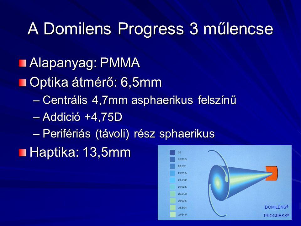 A Domilens Progress 3 műlencse Alapanyag: PMMA Optika átmérő: 6,5mm –Centrális 4,7mm asphaerikus felszínű –Addició +4,75D –Perifériás (távoli) rész sp