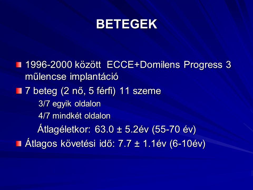 BETEGEK 1996-2000 között ECCE+Domilens Progress 3 műlencse implantáció 7 beteg (2 nő, 5 férfi) 11 szeme 3/7 egyik oldalon 3/7 egyik oldalon 4/7 mindké