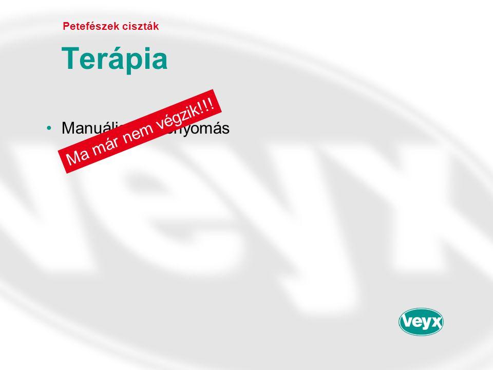 •Manuális összenyomás Petefészek ciszták Terápia Ma már nem végzik!!!