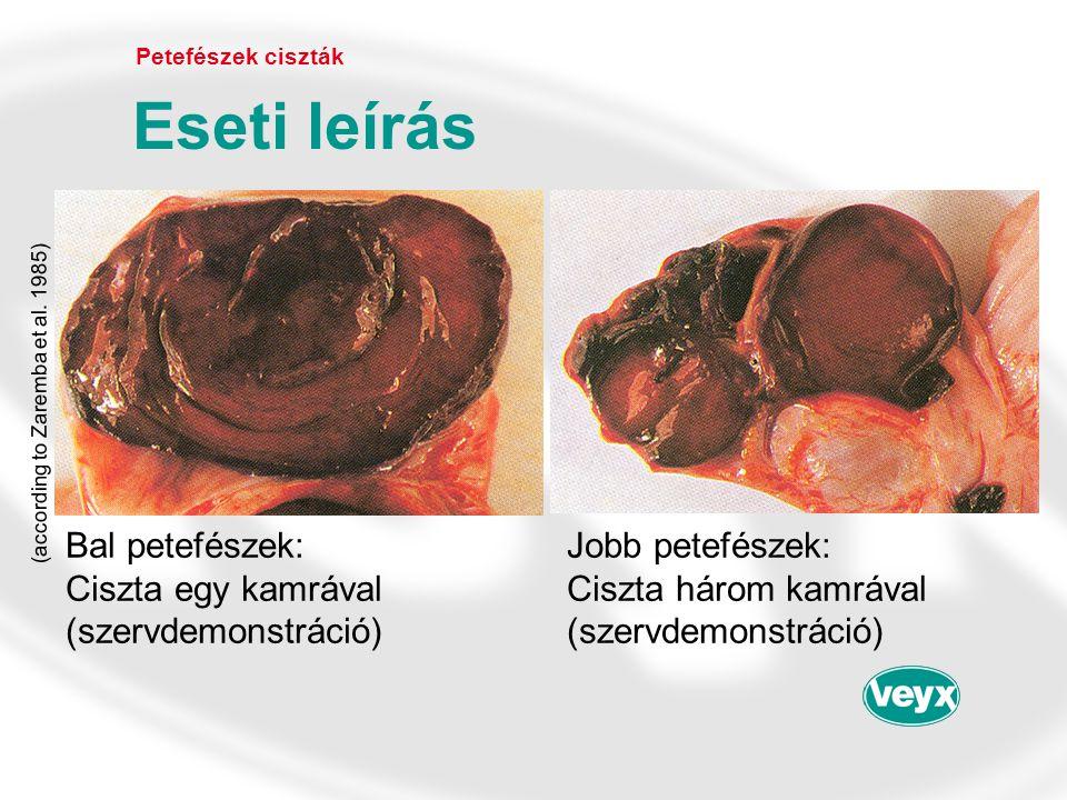 Bal petefészek: Jobb petefészek: Ciszta egy kamrávalCiszta három kamrával (szervdemonstráció)(szervdemonstráció) Petefészek ciszták Eseti leírás (acco