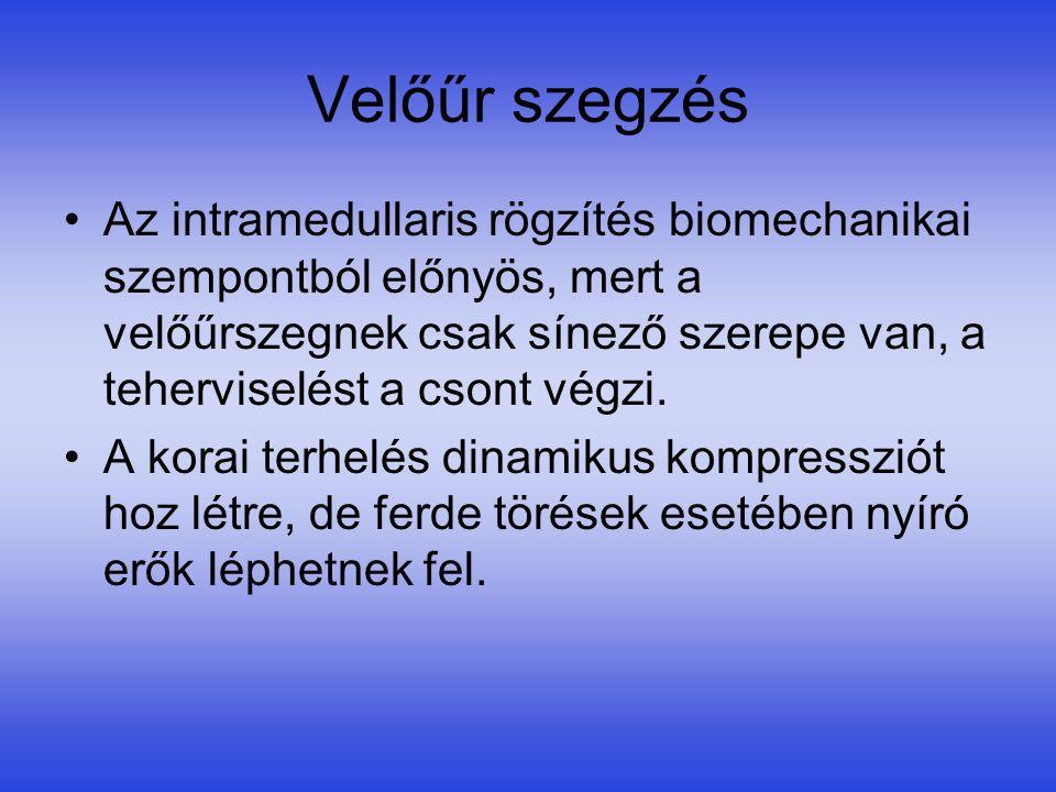 Velőűr szegzés •Az intramedullaris rögzítés biomechanikai szempontból előnyös, mert a velőűrszegnek csak sínező szerepe van, a teherviselést a csont v