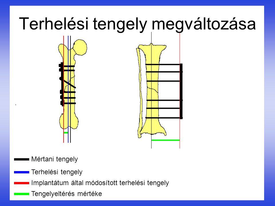 Terhelési tengely megváltozása Mértani tengely Terhelési tengely Implantátum által módosított terhelési tengely Tengelyeltérés mértéke