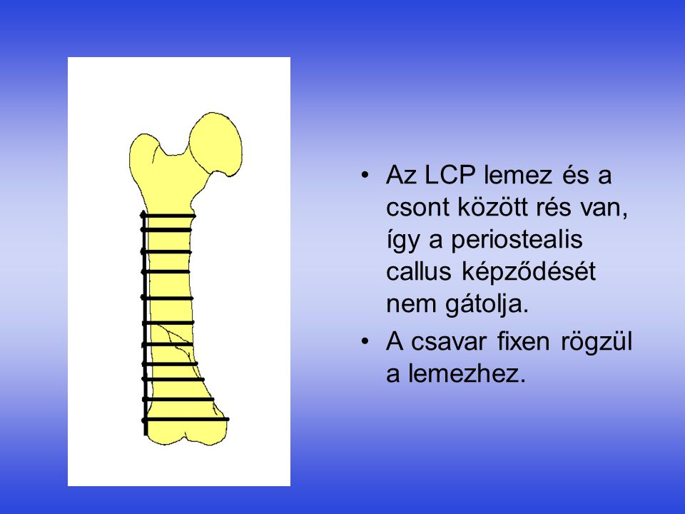 •Az LCP lemez és a csont között rés van, így a periostealis callus képződését nem gátolja. •A csavar fixen rögzül a lemezhez.