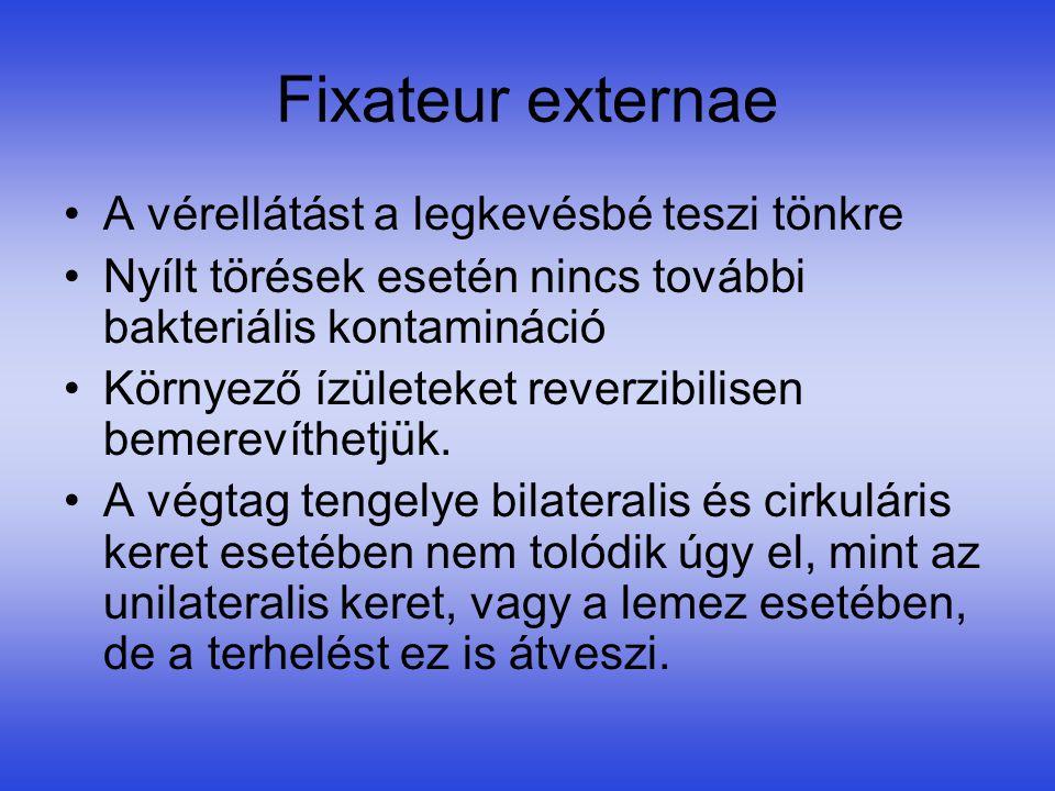 Fixateur externae •A vérellátást a legkevésbé teszi tönkre •Nyílt törések esetén nincs további bakteriális kontamináció •Környező ízületeket reverzibi