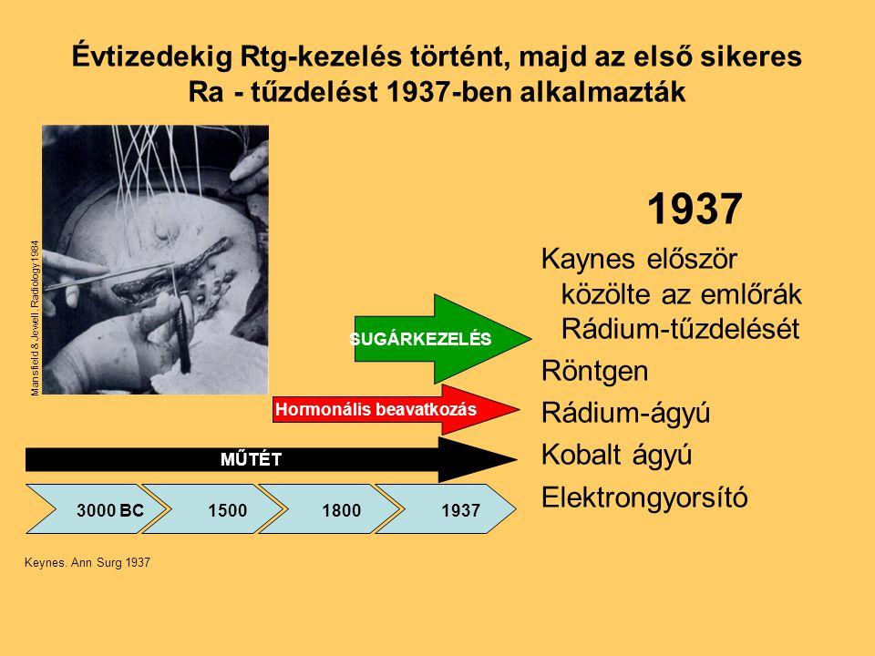 Évtizedekig Rtg-kezelés történt, majd az első sikeres Ra - tűzdelést 1937-ben alkalmazták 1937 Kaynes először közölte az emlőrák Rádium-tűzdelését Rön
