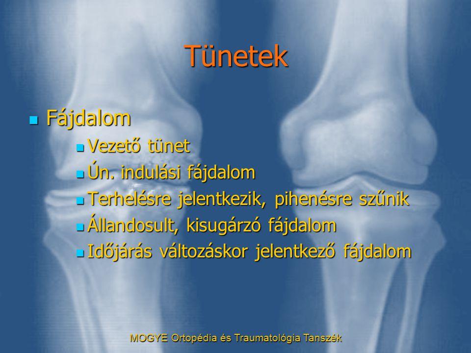 MOGYE Ortopédia és Traumatológia Tanszék Tünetek  Fájdalom  Vezető tünet  Ún. indulási fájdalom  Terhelésre jelentkezik, pihenésre szűnik  Álland