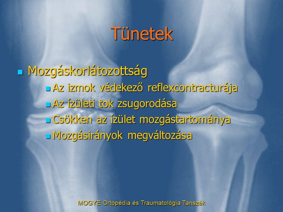 MOGYE Ortopédia és Traumatológia Tanszék Tünetek  Mozgáskorlátozottság  Az izmok védekező reflexcontracturája  Az ízületi tok zsugorodása  Csökken