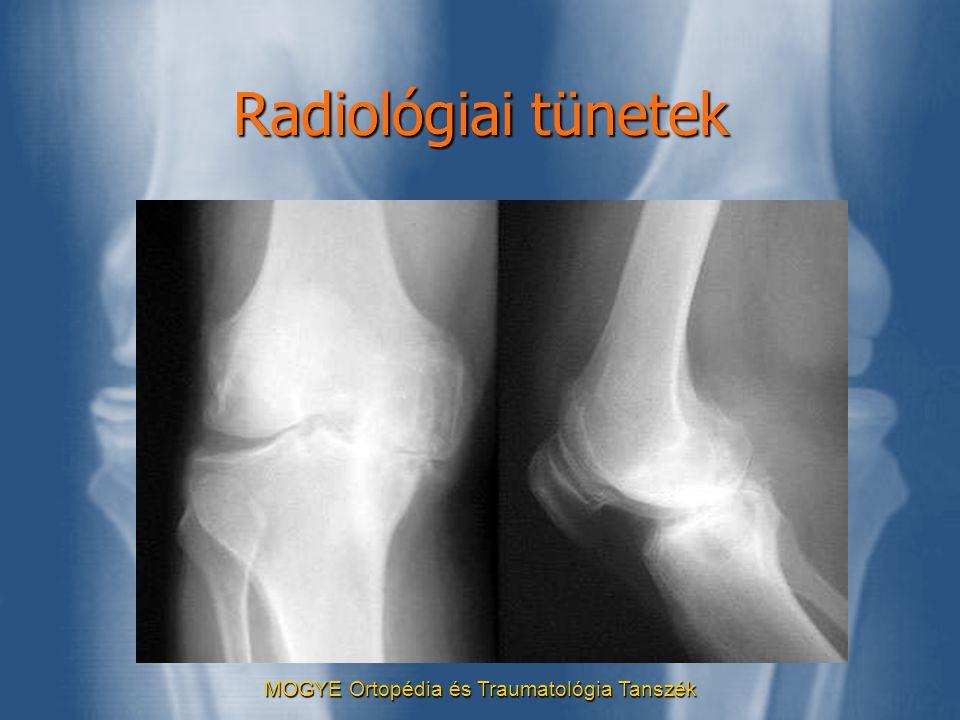 MOGYE Ortopédia és Traumatológia Tanszék Radiológiai tünetek