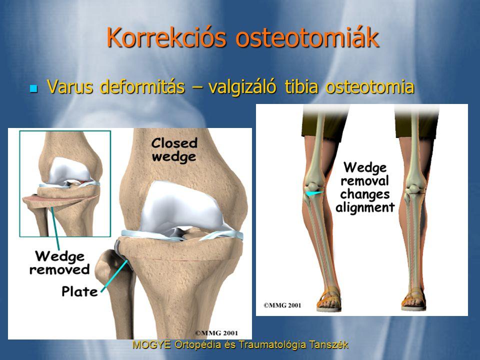MOGYE Ortopédia és Traumatológia Tanszék Korrekciós osteotomiák  Varus deformitás – valgizáló tibia osteotomia
