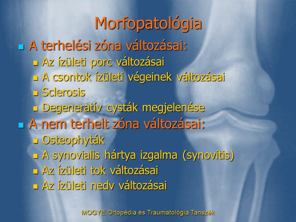 MOGYE Ortopédia és Traumatológia Tanszék Morfopatológia  A terhelési zóna változásai:  Az ízületi porc változásai  A csontok ízületi végeinek válto