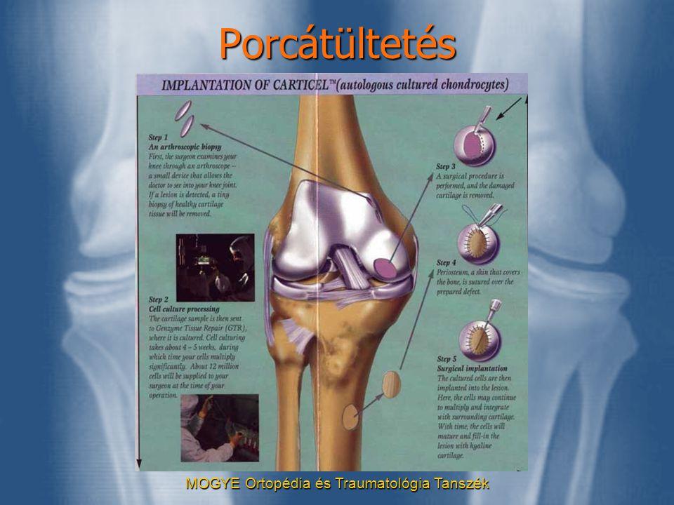 MOGYE Ortopédia és Traumatológia TanszékPorcátültetés