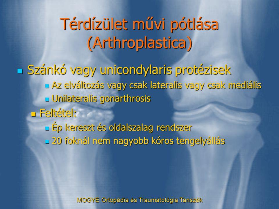 Térdízület művi pótlása (Arthroplastica)  Szánkó vagy unicondylaris protézisek  Az elváltozás vagy csak lateralis vagy csak mediális  Unilateralis