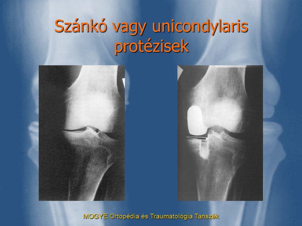 MOGYE Ortopédia és Traumatológia Tanszék Szánkó vagy unicondylaris protézisek