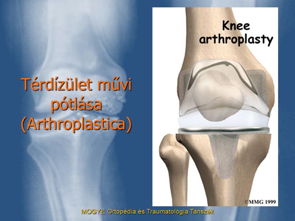 MOGYE Ortopédia és Traumatológia Tanszék Térdízület művi pótlása (Arthroplastica)