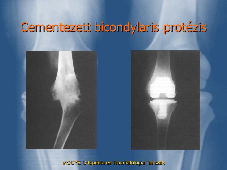MOGYE Ortopédia és Traumatológia Tanszék Cementezett bicondylaris protézis