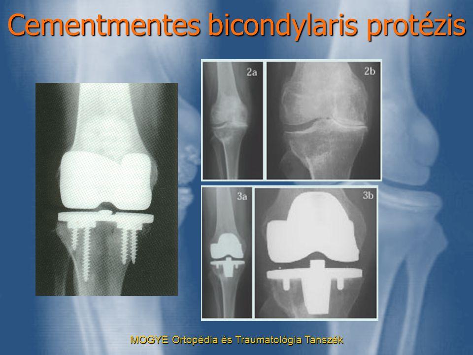 MOGYE Ortopédia és Traumatológia Tanszék Cementmentes bicondylaris protézis