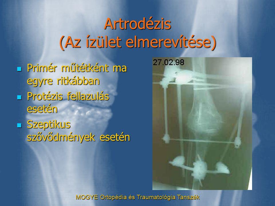 MOGYE Ortopédia és Traumatológia Tanszék Artrodézis (Az ízület elmerevítése)  Primér műtétként ma egyre ritkábban  Protézis fellazulás esetén  Szep