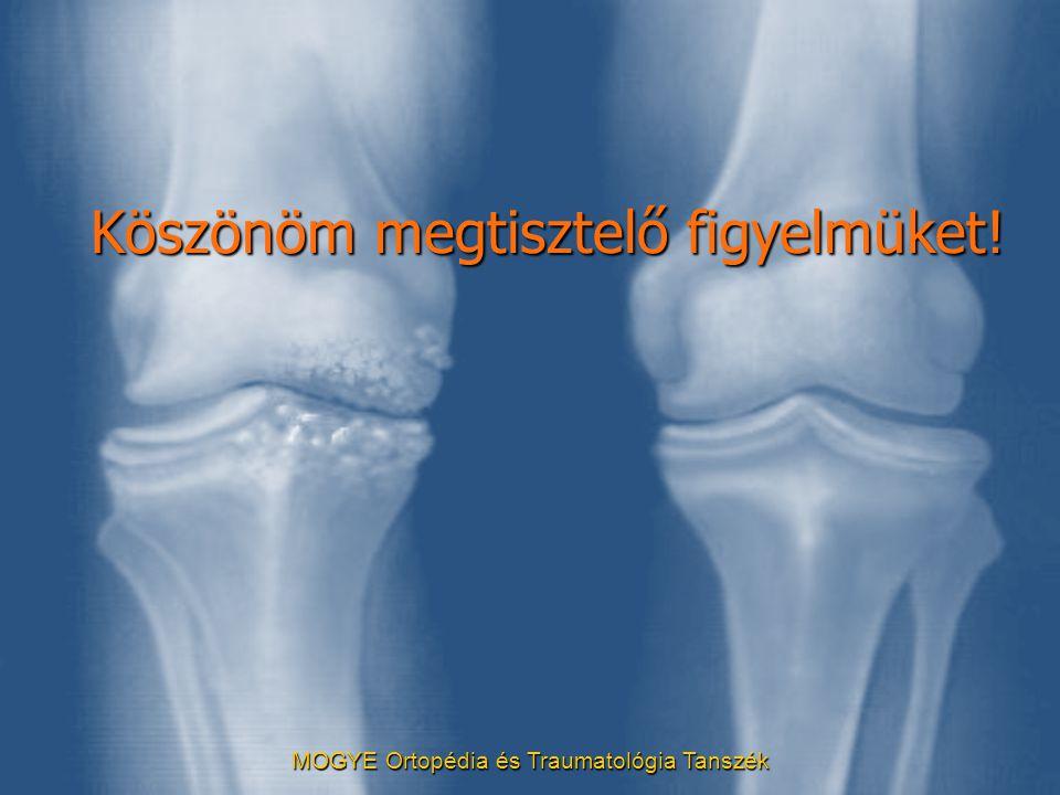 MOGYE Ortopédia és Traumatológia Tanszék Köszönöm megtisztelő figyelmüket!