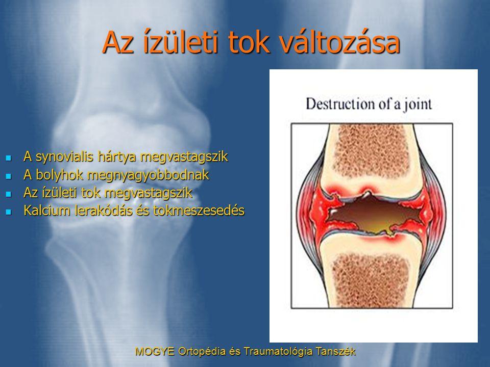 MOGYE Ortopédia és Traumatológia Tanszék Az ízületi tok változása  A synovialis hártya megvastagszik  A bolyhok megnyagyobbodnak  Az ízületi tok me